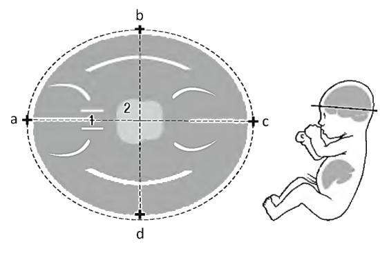 1 – полость прозрачной перегородки, 2 – зрительные бугры и ножки мозга, bd – бипариетальный размер, ac – лобно-затылочный размер