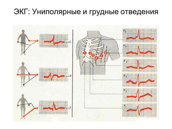 Электрокардиографические отведения