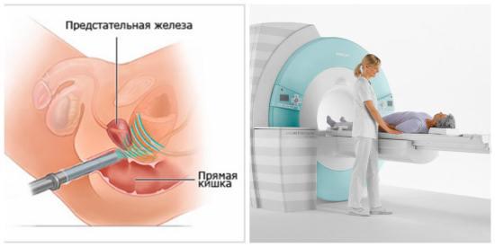 Другие методы исследования тазовых органов
