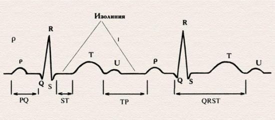 Пример электрокардиограммы