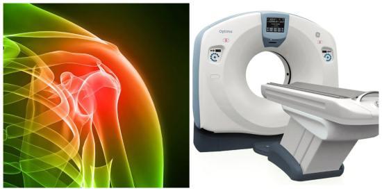 Компьютерная томография плеча