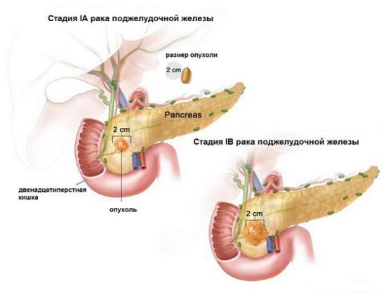 Опухоль поджелудочной