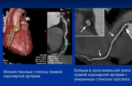 МСКТ-ангиография сосудов сердца