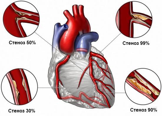 Стеноз коронарных артерий