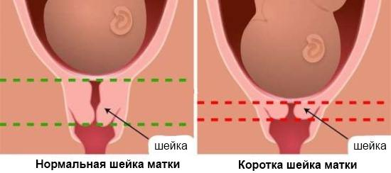 Истмико-цервикальная недостаточность шейки матки (ИЦН)