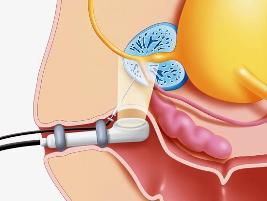 Ультразвуковое исследование предстательной железы