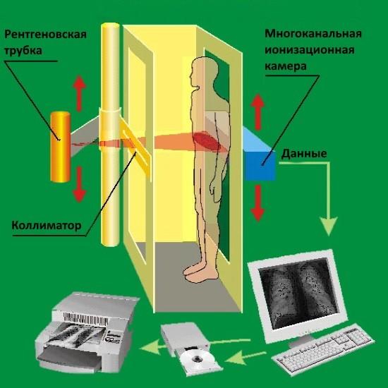 Принцип работы рентгеновского оборудования