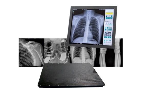 Современные аппараты позволяют делать запись рентгенограммы в цифровом виде