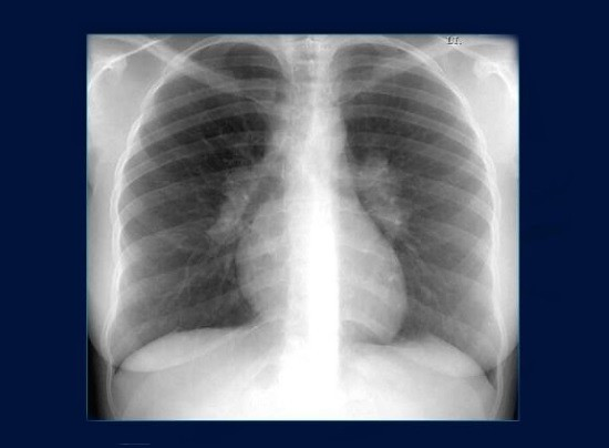Рентгенограмма легких при саркоидозе
