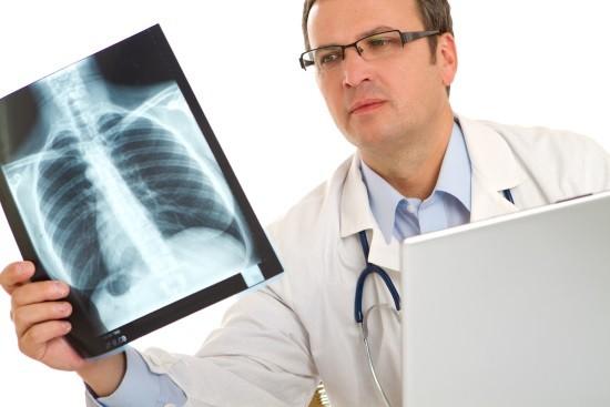 Врач-рентгенолог изучает снимок легкиих