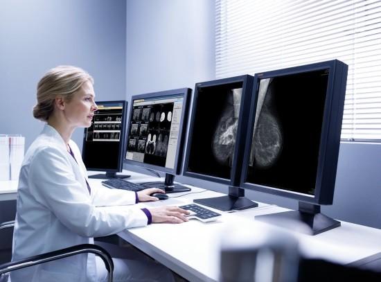 Рентгенолог оценивает маммограммы