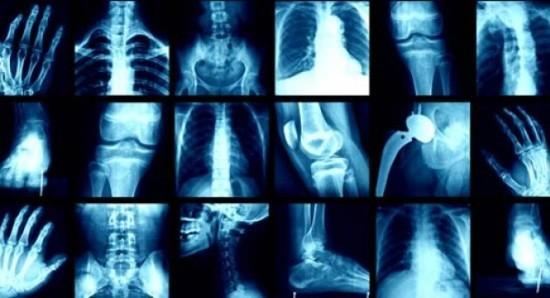 Медицинская рентгенография