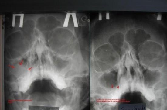 Киста верхнечелюстной пазухи на рентгенограмме