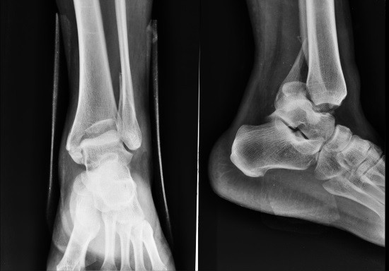 Голеностоп на рентгенограмме