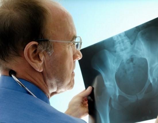 Врач оценивает рентгенограмму