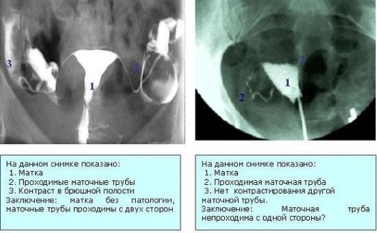 Как сделать рентген труб 112
