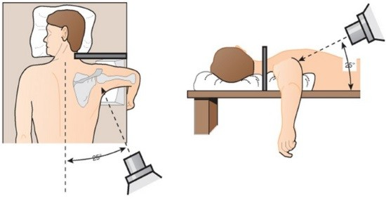 Рентгенография плечевого сустава