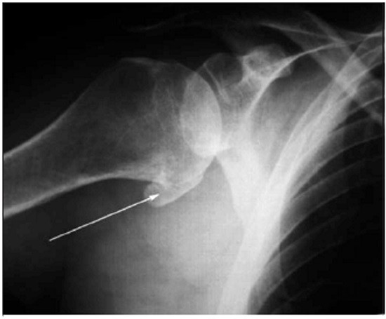 Наличие остеофита по краю головки плечевой кости