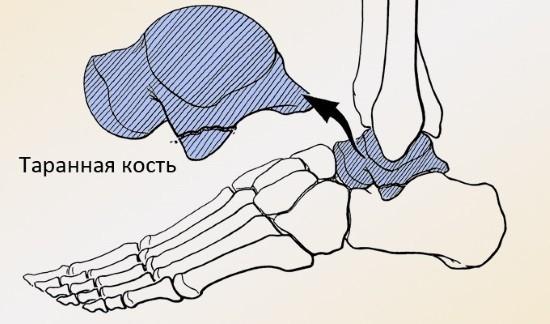 Перелом таранной кости вызывает тяжелые последствия