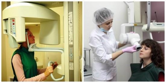 Экстраоральная и интраоральная рентгенография