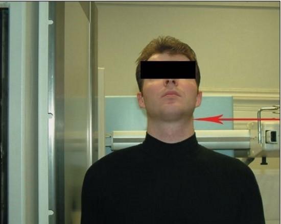 Функциональная рентгенография в боковой проекции при максимальном разгибании головы