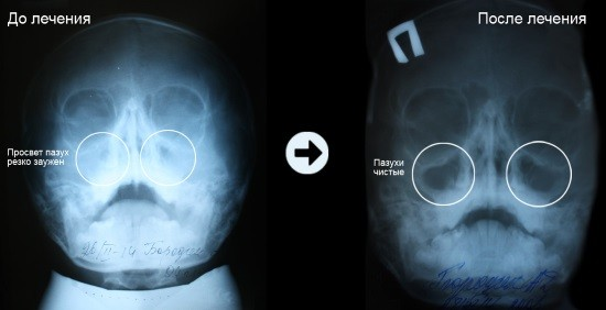 Рентгеновский снимок пазух носа