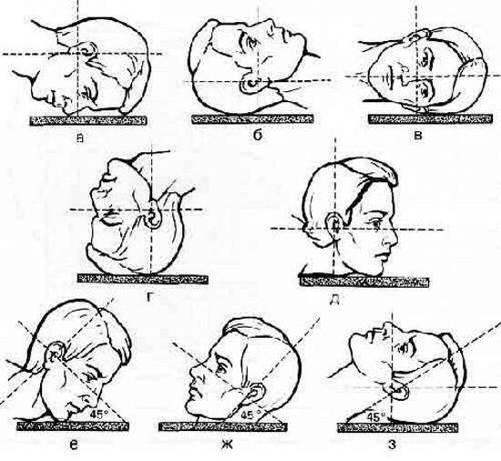 Схема укладок для проведения рентгенографии черепа