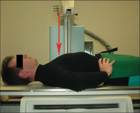 Пациенту проводят рентгеновское исследование позвоночника