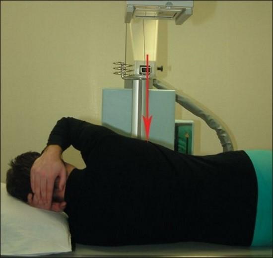 Методика проведения рентгенографии грудного отдела позвоночника