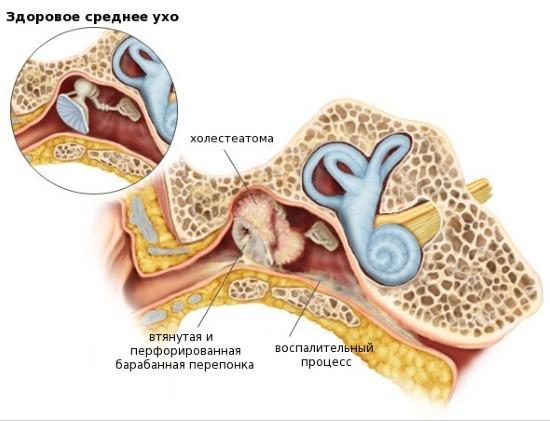 Своевременная диагностика - важный фактор эффективного лечения холестеатомы