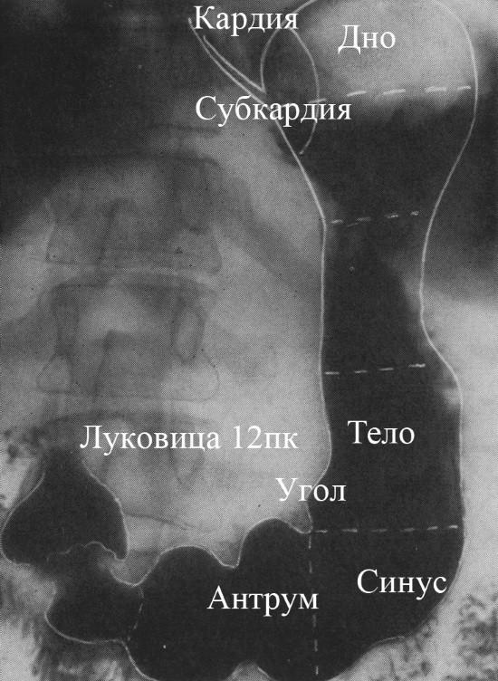 Желудок на рентгеновском снимке