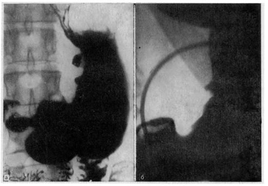 Рентгенограммы при язве желудка
