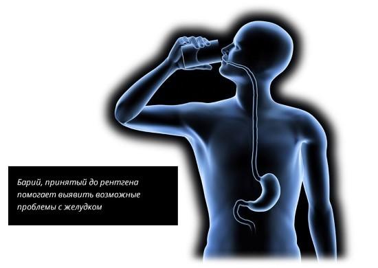 Контрастная рентгенография желудка проводится с барием