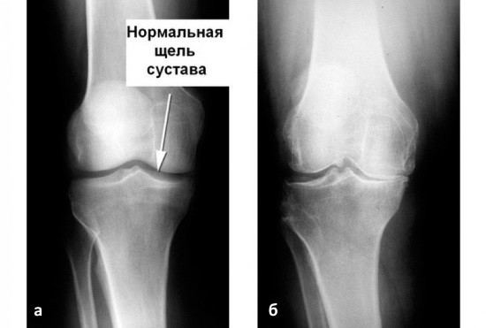Узи при артрозе коленного сустав анатомия и проблемы тазобедренного сустава