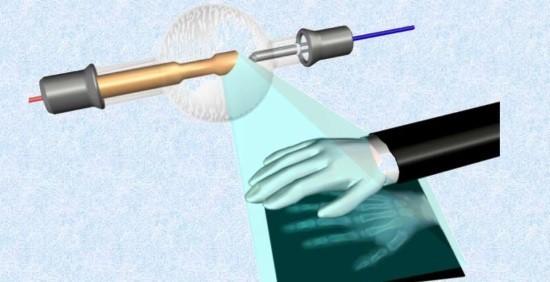 Проекция скелета руки