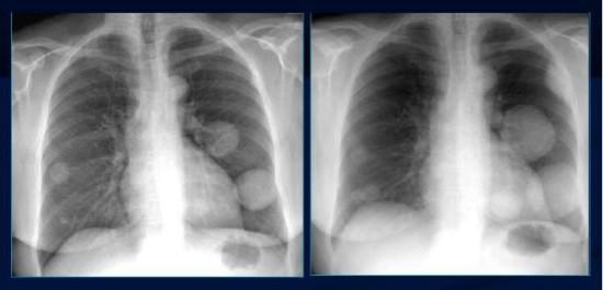 Рентгенограммы ОГК