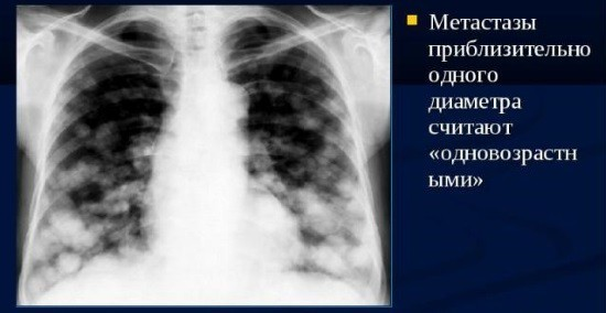 Рентгенологическая картина метастазов в легкие