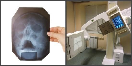 Снимки околоносовых пазух могут быть сделаны на цифровом или пленочном рентген-аппрате