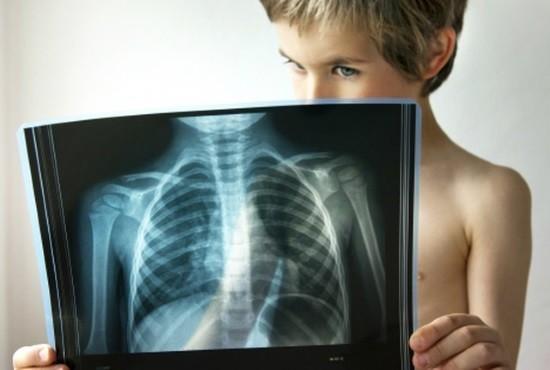 Маленьких пациентов отправляют на рентгенографию в тех случаях, когда нельзя более безопасным способом установить диагноз