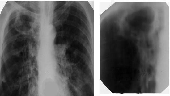 Обзорная рентгенограмма грудной клетки при туберкулезе