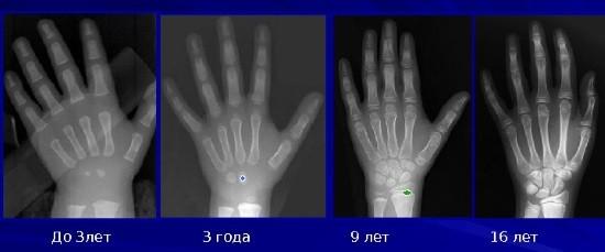 Возрастные особенности окостенения скелета