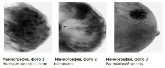 Молочная железа в норме и при различных патологиях