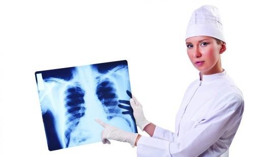 Врач и рентгеновский снимок легких