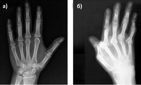 Рентгенограммы кисти