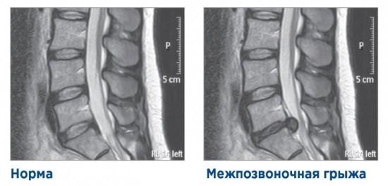 МРТ: норма и грыжа диска
