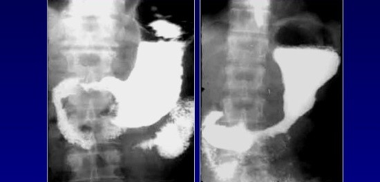 ЗНО желудка на рентгенограммах