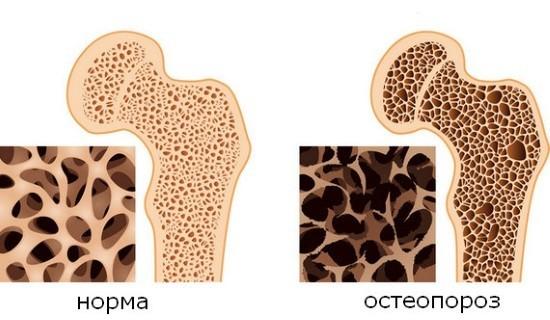 Снижение плотности костной ткани