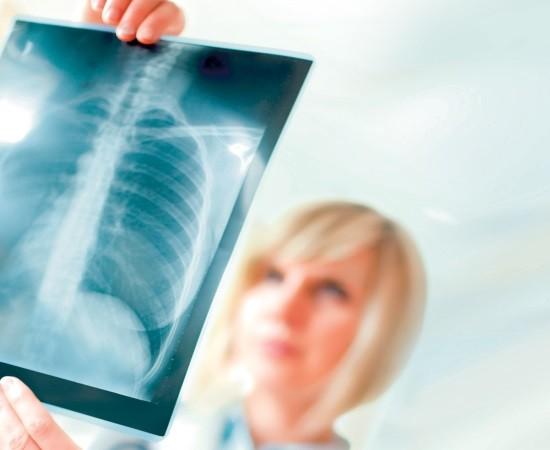Описанием рентгенограмм занимается врач-рентгенолог