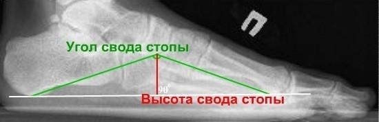 Три черты на рентгенограмме стопы
