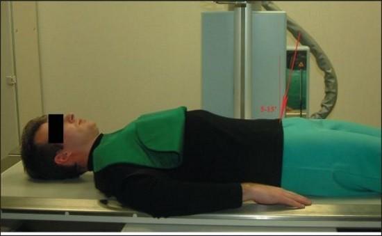 Укладка при рентгенологическом исследовании позвоночника